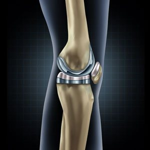Joint Replacement image